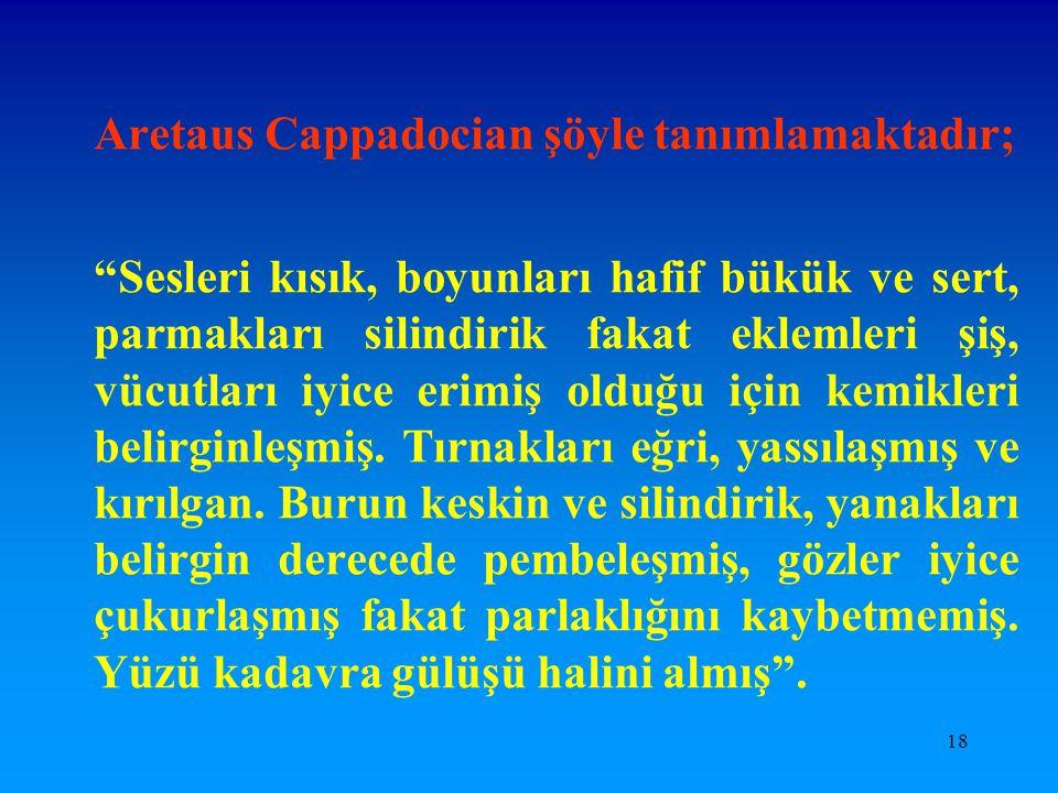"""18 Aretaus Cappadocian şöyle tanımlamaktadır; """"Sesleri kısık, boyunları hafif bükük ve sert, parmakları silindirik fakat eklemleri şiş, vücutları iyic"""
