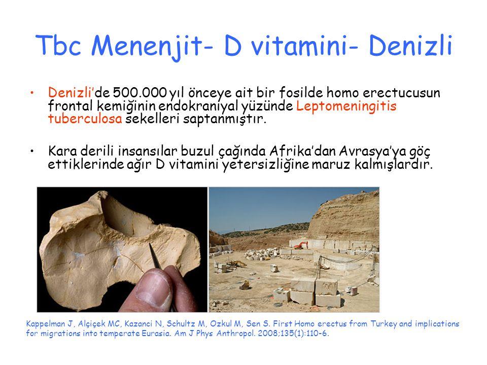 Tbc Menenjit- D vitamini- Denizli Denizli'de 500.000 yıl önceye ait bir fosilde homo erectucusun frontal kemiğinin endokraniyal yüzünde Leptomeningitis tuberculosa sekelleri saptanmıştır.