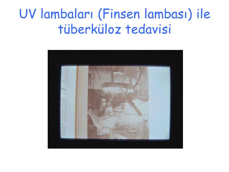 UV lambaları (Finsen lambası) ile tüberküloz tedavisi
