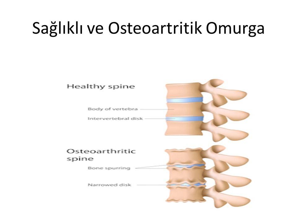 Bel fıtığının en önemli belirtisi bel ve bacak ağrısıdır.