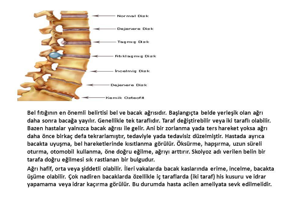 Bel fıtığının en önemli belirtisi bel ve bacak ağrısıdır. Başlangıçta belde yerleşik olan ağrı daha sonra bacağa yayılır. Genellikle tek taraflıdır. T