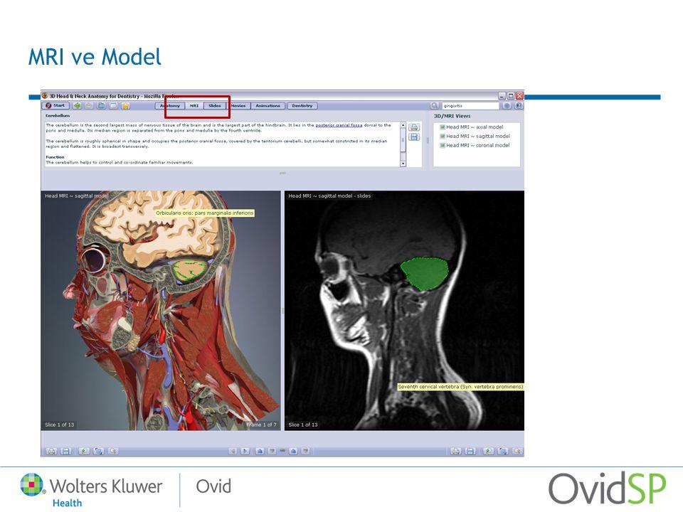 MRI ve Model