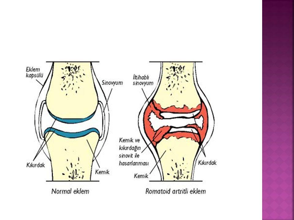  Fizik tedavi ile ağrılar azalmakta ; fiziksel güç ve esneklik için, avantaj sağlayabilmektedir.