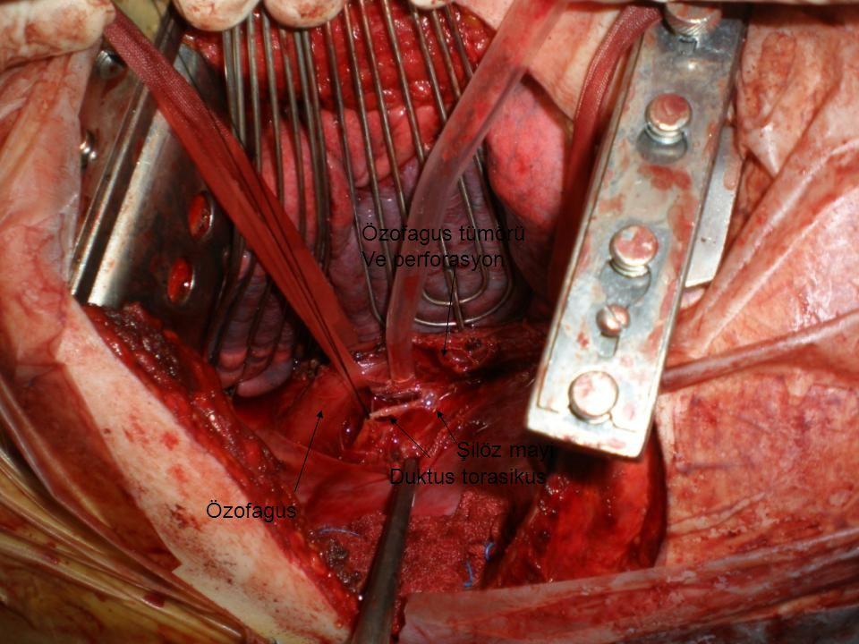 Duktus torasikus Özofagus Özofagus tümörü Ve perforasyon Şilöz mayi