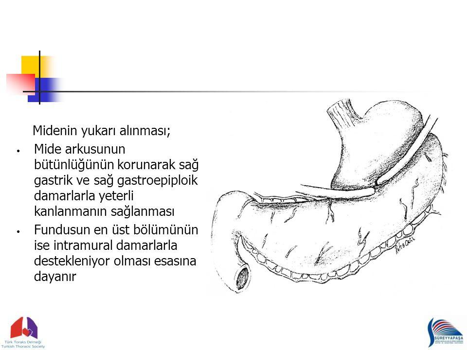 Midenin yukarı alınması; Mide arkusunun bütünlüğünün korunarak sağ gastrik ve sağ gastroepiploik damarlarla yeterli kanlanmanın sağlanması Fundusun en üst bölümünün ise intramural damarlarla destekleniyor olması esasına dayanır
