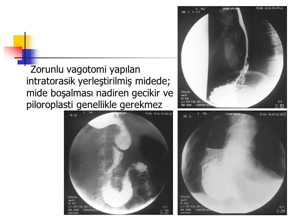 Zorunlu vagotomi yapılan intratorasik yerleştirilmiş midede; mide boşalması nadiren gecikir ve piloroplasti genellikle gerekmez