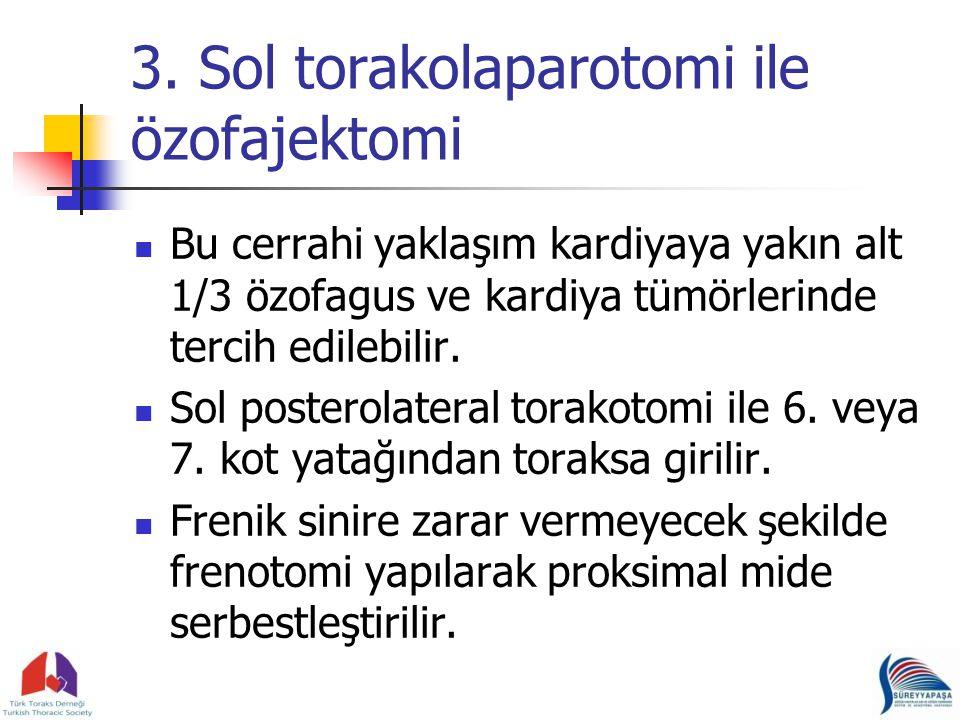 3. Sol torakolaparotomi ile özofajektomi Bu cerrahi yaklaşım kardiyaya yakın alt 1/3 özofagus ve kardiya tümörlerinde tercih edilebilir. Sol posterola