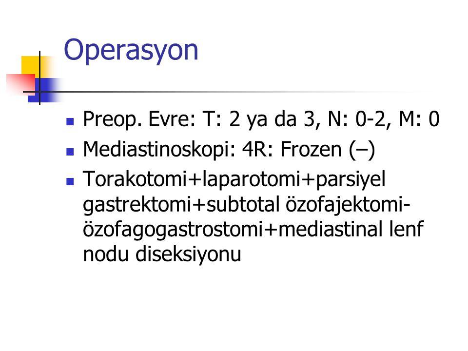 Operasyon Preop.