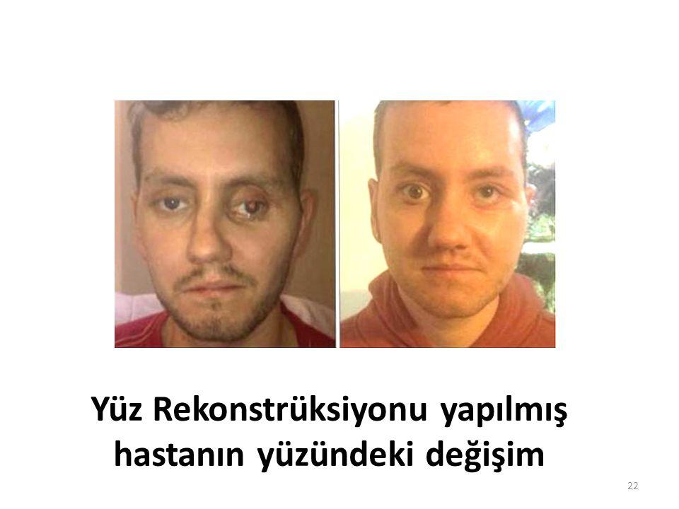 Yüz Rekonstrüksiyonu yapılmış hastanın yüzündeki değişim 22