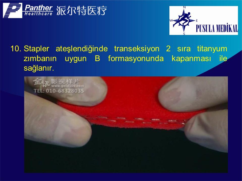 10.Stapler ateşlendiğinde transeksiyon 2 sıra titanyum zımbanın uygun B formasyonunda kapanması ile sağlanır.