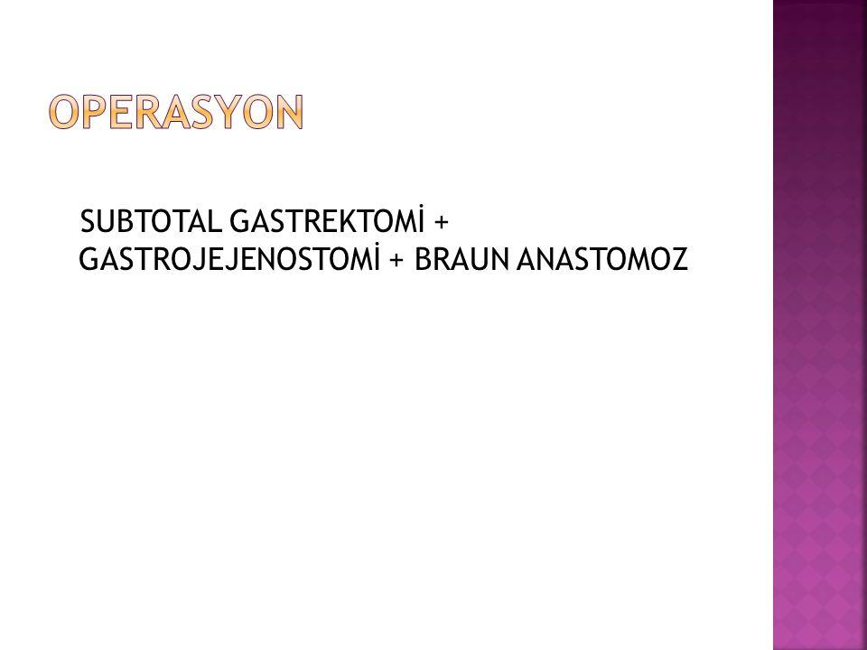 SUBTOTAL GASTREKTOMİ + GASTROJEJENOSTOMİ + BRAUN ANASTOMOZ