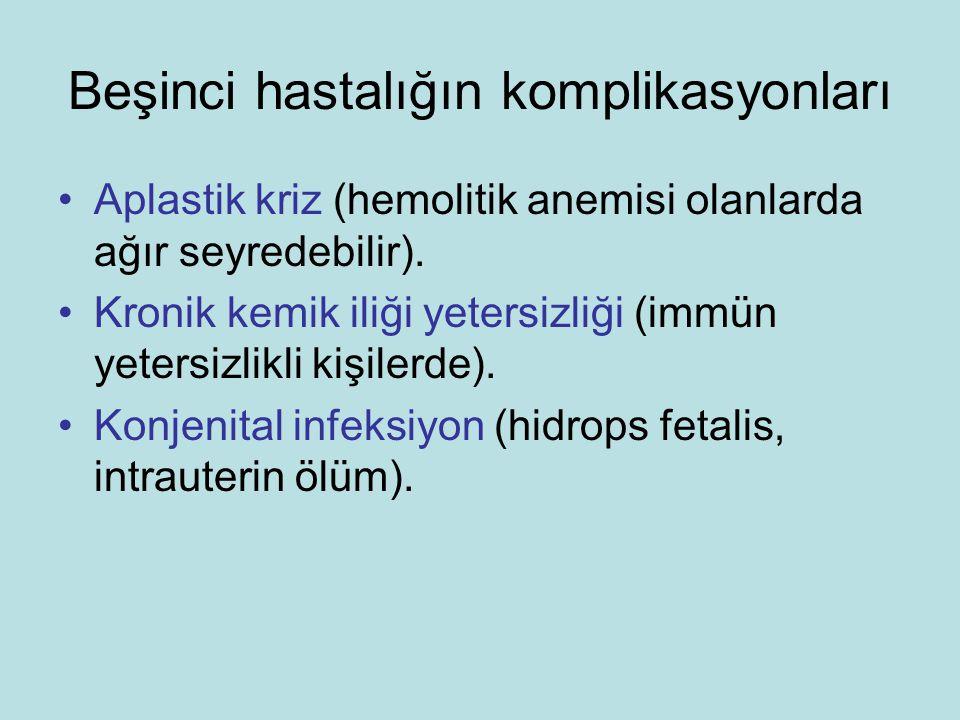 Beşinci hastalığın komplikasyonları Aplastik kriz (hemolitik anemisi olanlarda ağır seyredebilir).