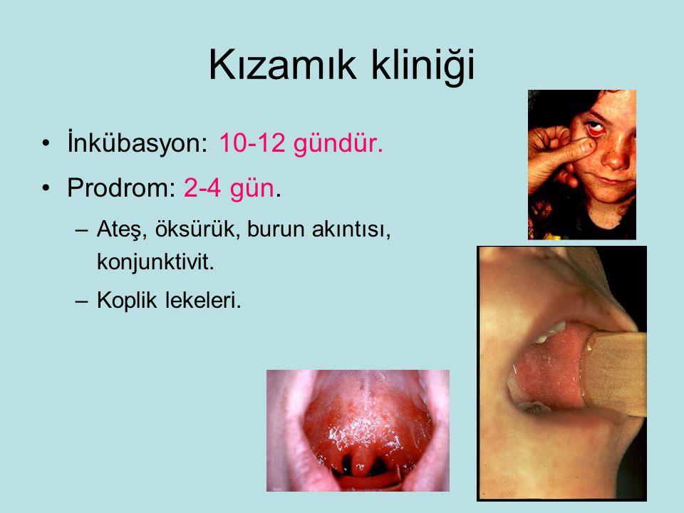Kızamık kliniği İnkübasyon: 10-12 gündür.Prodrom: 2-4 gün.