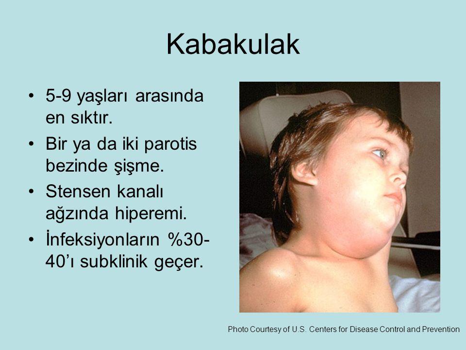 Kabakulak 5-9 yaşları arasında en sıktır.Bir ya da iki parotis bezinde şişme.