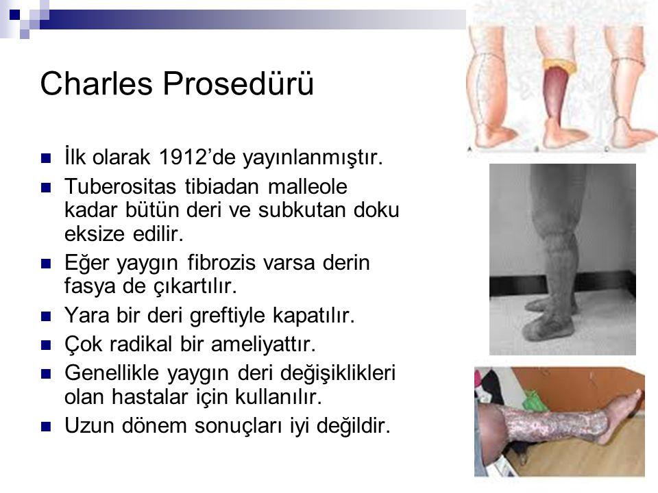Charles Prosedürü İlk olarak 1912'de yayınlanmıştır. Tuberositas tibiadan malleole kadar bütün deri ve subkutan doku eksize edilir. Eğer yaygın fibroz