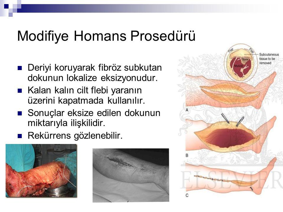 Modifiye Homans Prosedürü Deriyi koruyarak fibröz subkutan dokunun lokalize eksizyonudur. Kalan kalın cilt flebi yaranın üzerini kapatmada kullanılır.