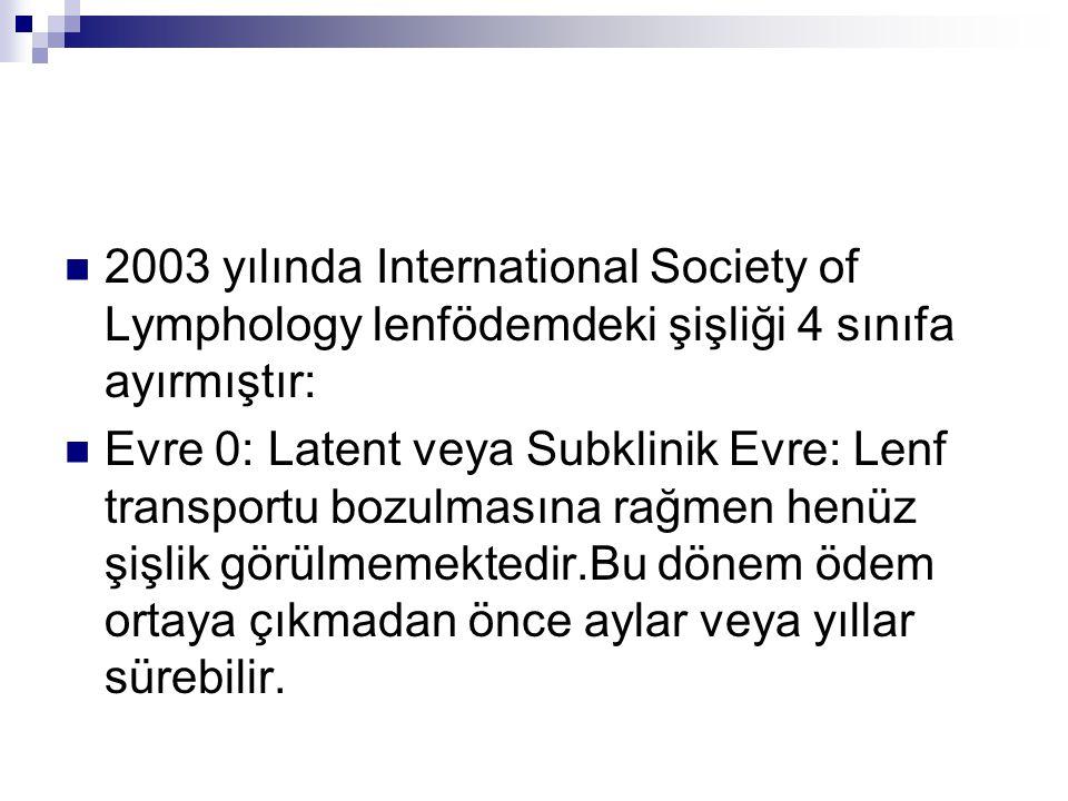 2003 yılında International Society of Lymphology lenfödemdeki şişliği 4 sınıfa ayırmıştır: Evre 0: Latent veya Subklinik Evre: Lenf transportu bozulma