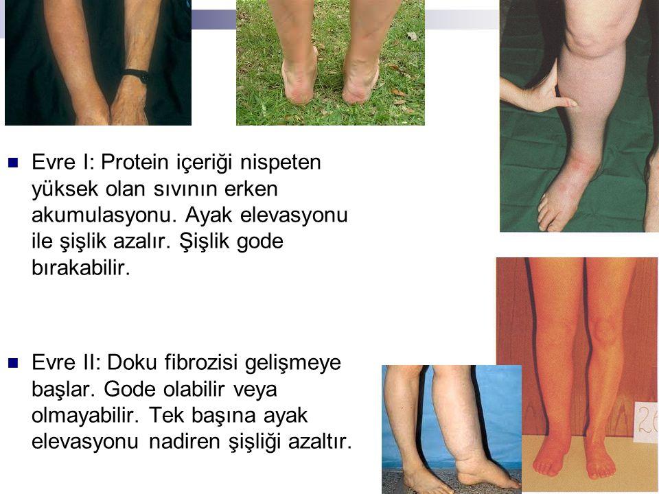 Evre I: Protein içeriği nispeten yüksek olan sıvının erken akumulasyonu. Ayak elevasyonu ile şişlik azalır. Şişlik gode bırakabilir. Evre II: Doku fib