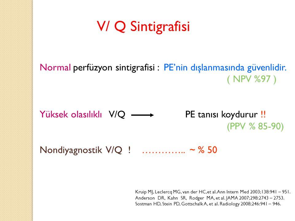 Normal perfüzyon sintigrafisi : PE'nin dışlanmasında güvenlidir. ( NPV %97 ) Yüksek olasılıklı V/Q PE tanısı koydurur !! (PPV % 85-90) Nondiyagnostik