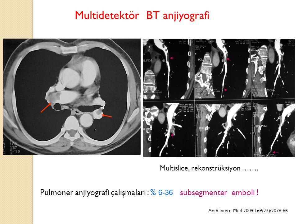 Multidetektör BT anjiyografi Pulmoner anjiyografi çalışmaları : % 6-36 subsegmenter emboli ! Arch Intern Med 2009;169(22):2078-86 Multislice, rekonstr