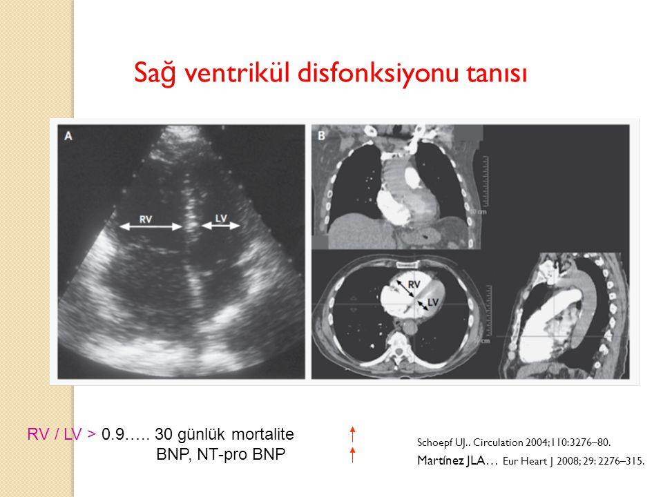 RV / LV > 0.9….. 30 günlük mortalite BNP, NT-pro BNP Sa ğ ventrikül disfonksiyonu tanısı Schoepf UJ.. Circulation 2004;110:3276–80. Martínez JLA… Eur