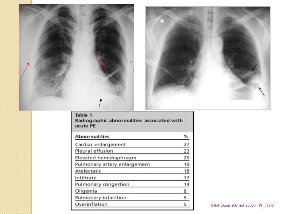 PE Klini ğ i Masif PE Hipotansiyon ve/veya şok + Sa ğ ventrikül dilatasyonu / disfonksiyonu Submasif PE Sa ğ ventrikül dilatasyonu / disfonksiyonu Nonmasif PE Yüksek riskli hasta Düşük orta riskli hasta
