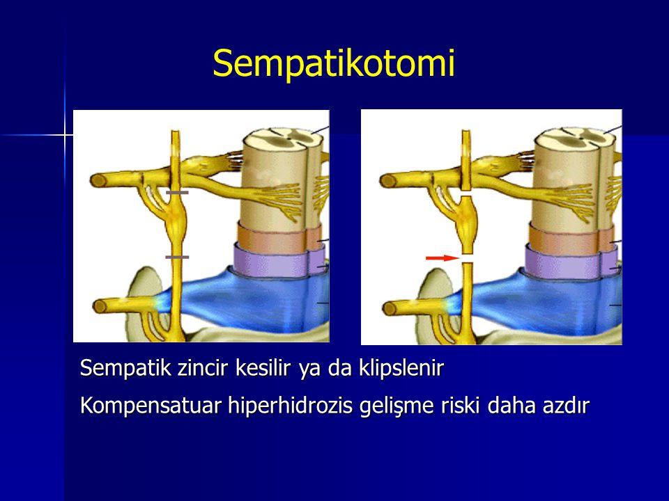 Sempatikotomi Sempatik zincir kesilir ya da klipslenir Kompensatuar hiperhidrozis gelişme riski daha azdır