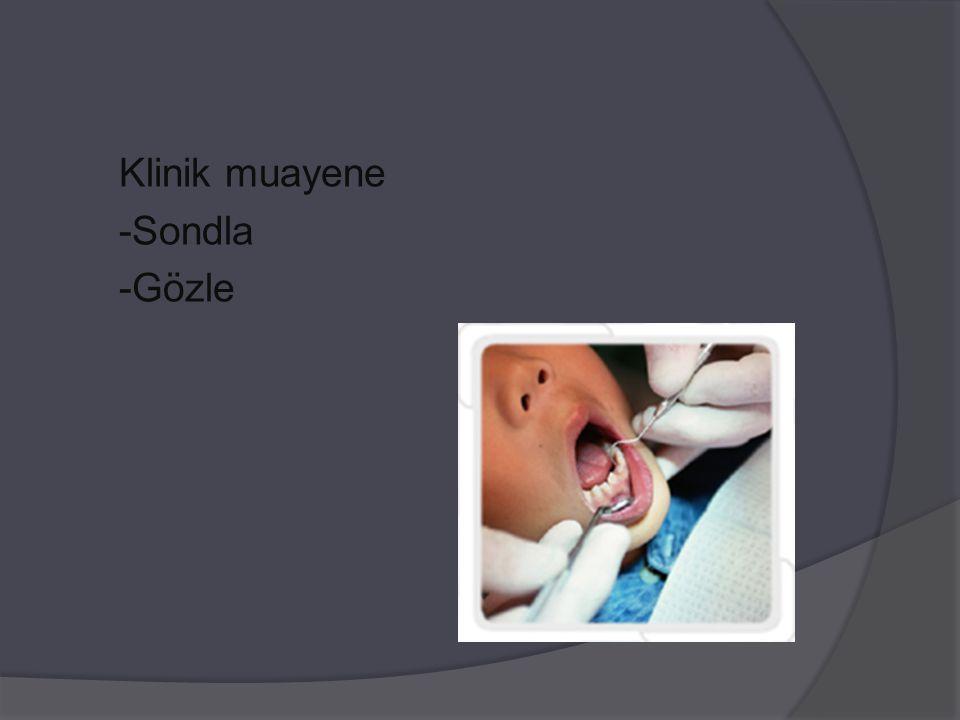 Klinik muayene -Sondla -Gözle