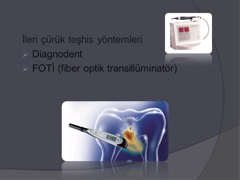 İleri çürük teşhis yöntemleri  Diagnodent  FOTİ (fiber optik transillüminatör)