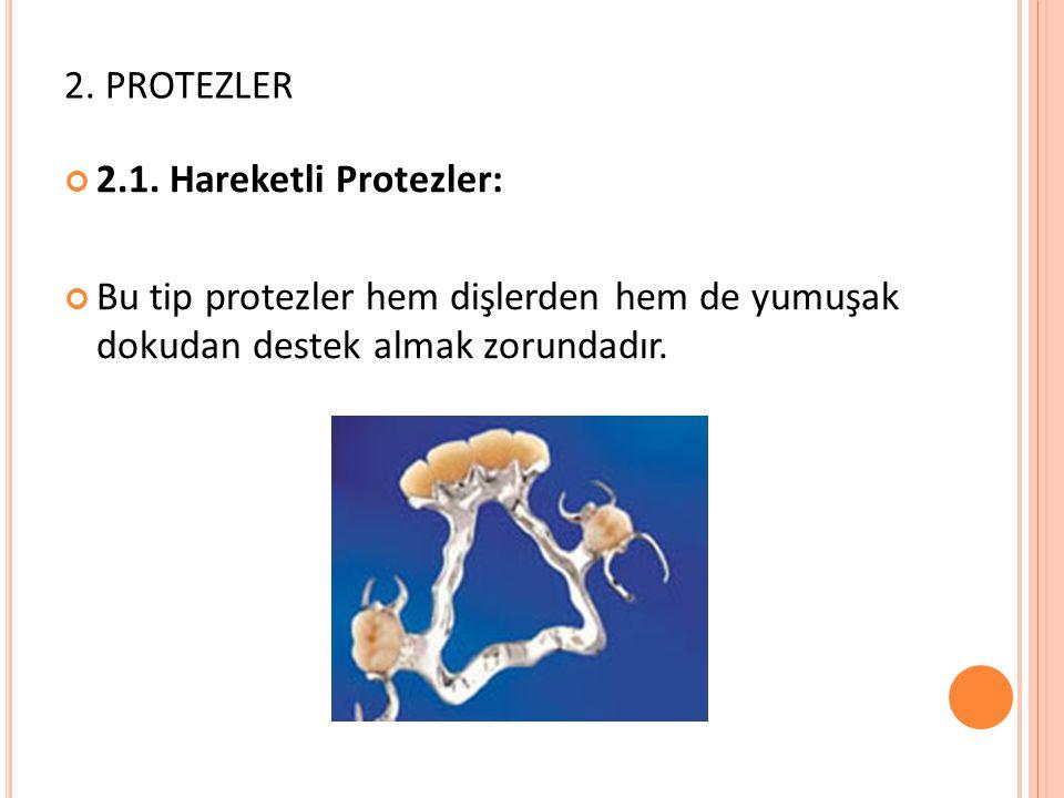 2. PROTEZLER 2.1. Hareketli Protezler: Bu tip protezler hem dişlerden hem de yumuşak dokudan destek almak zorundadır.
