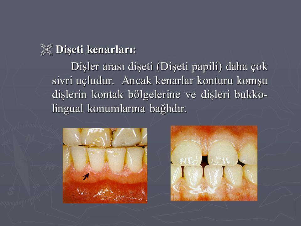  Dişeti kenarları: Dişler arası dişeti (Dişeti papili) daha çok sivri uçludur. Ancak kenarlar konturu komşu dişlerin kontak bölgelerine ve dişleri bu