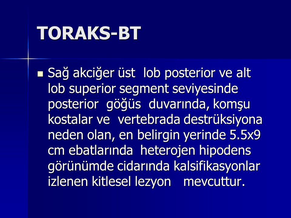 TORAKS-BT Sağ akciğer üst lob posterior ve alt lob superior segment seviyesinde posterior göğüs duvarında, komşu kostalar ve vertebrada destrüksiyona