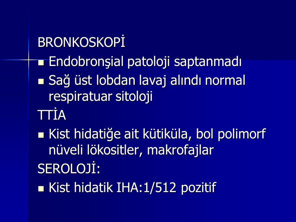 BRONKOSKOPİ Endobronşial patoloji saptanmadı Endobronşial patoloji saptanmadı Sağ üst lobdan lavaj alındı normal respiratuar sitoloji Sağ üst lobdan l
