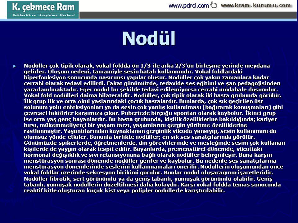 www.pdrci.comNodül ► Nodüller çok tipik olarak, vokal foldda ön 1/3 ile arka 2/3'ün birleşme yerinde meydana gelirler. Oluşum nedeni, tamamiyle sesin