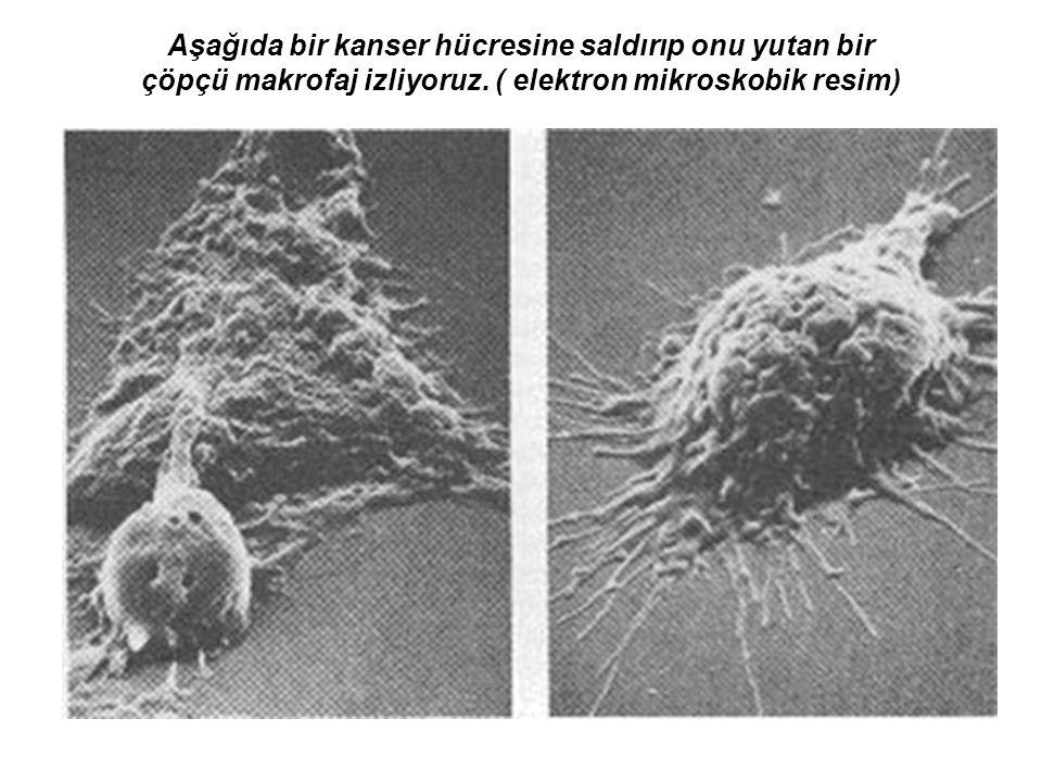 KRONİK MYELOSİTİK LÖSEMİ(KML): Kök hücrelerinin farklılaşması nedeyle, dolaşımda olgunlaşmamış kök hücrelerinin bulunmasıdır.