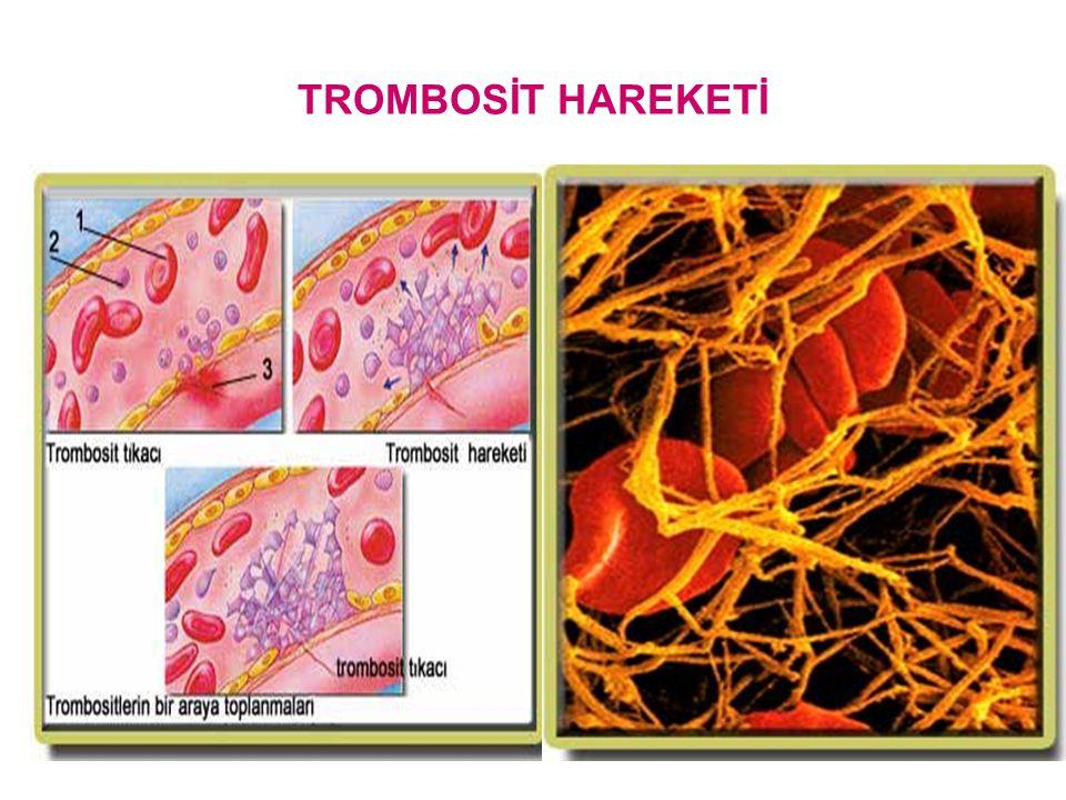 HEMOFİLİ B  Christmas hastalığı) Faktör IX eksikliğinde görülür.Sadece erkeklerde görülür. X kromozomuyla geçiş gösterdiği için. TROMBOSİTOPENİLER: T