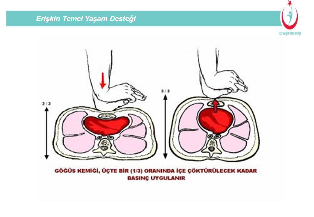 Yeni doğanda kapalı kalp masajı ; İki parmak metodu Doğru Göğüs Kompresyonu Yanlış Kalp BastırBırak