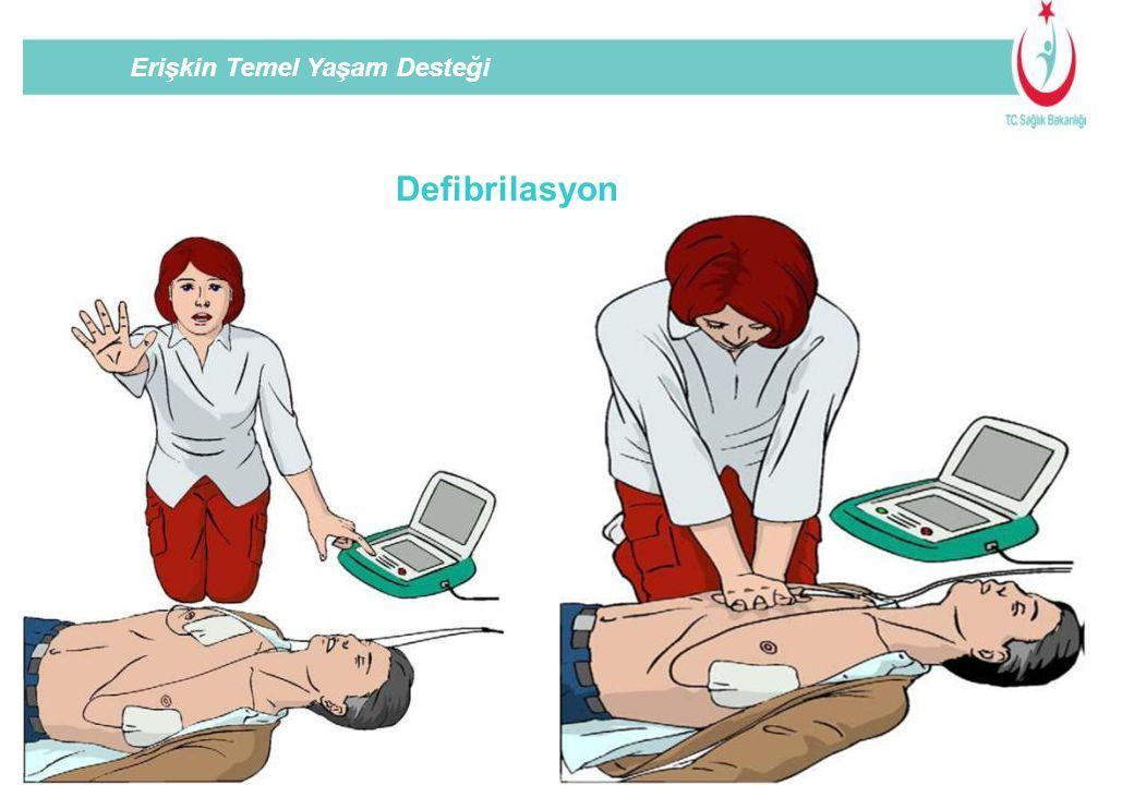 Erişkin Temel Yaşam Desteği Defibrilasyon