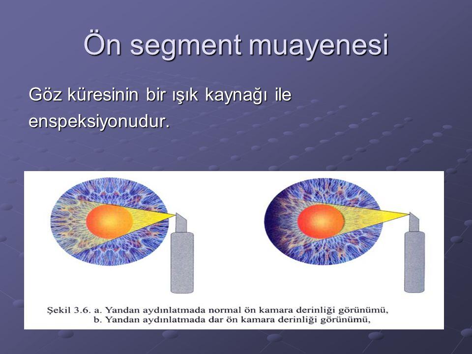 Ön segment muayenesi Göz küresinin bir ışık kaynağı ile enspeksiyonudur.