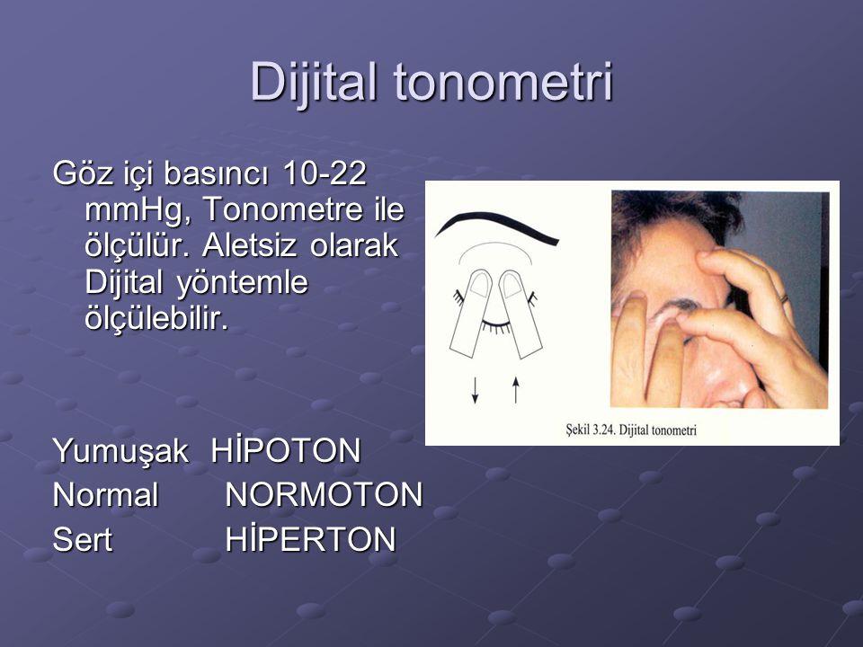 Dijital tonometri Göz içi basıncı 10-22 mmHg, Tonometre ile ölçülür. Aletsiz olarak Dijital yöntemle ölçülebilir. Yumuşak HİPOTON NormalNORMOTON SertH