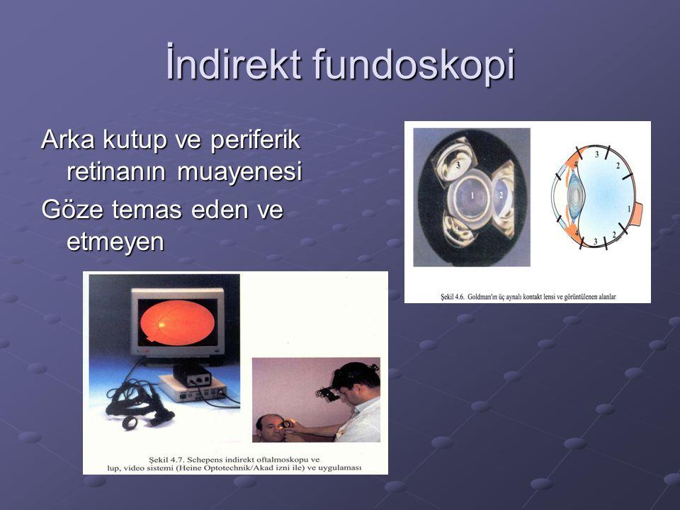 İndirekt fundoskopi Arka kutup ve periferik retinanın muayenesi Göze temas eden ve etmeyen