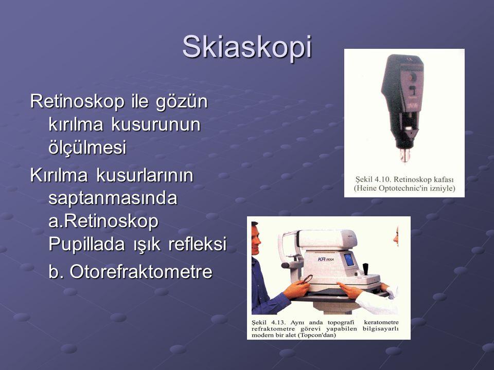 Skiaskopi Retinoskop ile gözün kırılma kusurunun ölçülmesi Kırılma kusurlarının saptanmasında a.Retinoskop Pupillada ışık refleksi b. Otorefraktometre