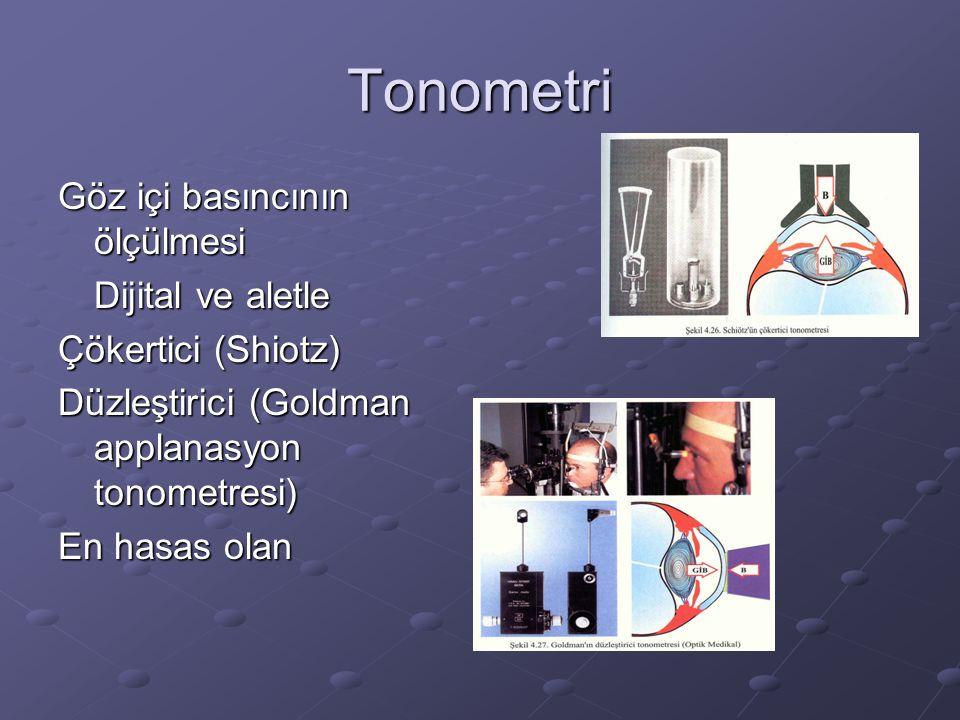 Tonometri Göz içi basıncının ölçülmesi Dijital ve aletle Çökertici (Shiotz) Düzleştirici (Goldman applanasyon tonometresi) En hasas olan
