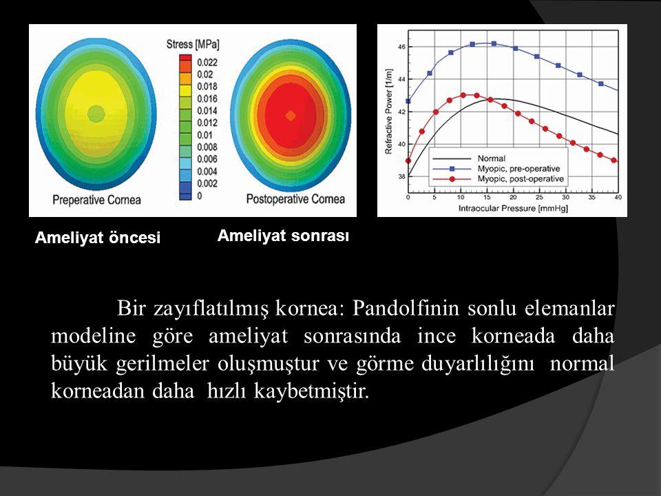 Bir zayıflatılmış kornea: Pandolfinin sonlu elemanlar modeline göre ameliyat sonrasında ince korneada daha büyük gerilmeler oluşmuştur ve görme duyarlılığını normal korneadan daha hızlı kaybetmiştir.