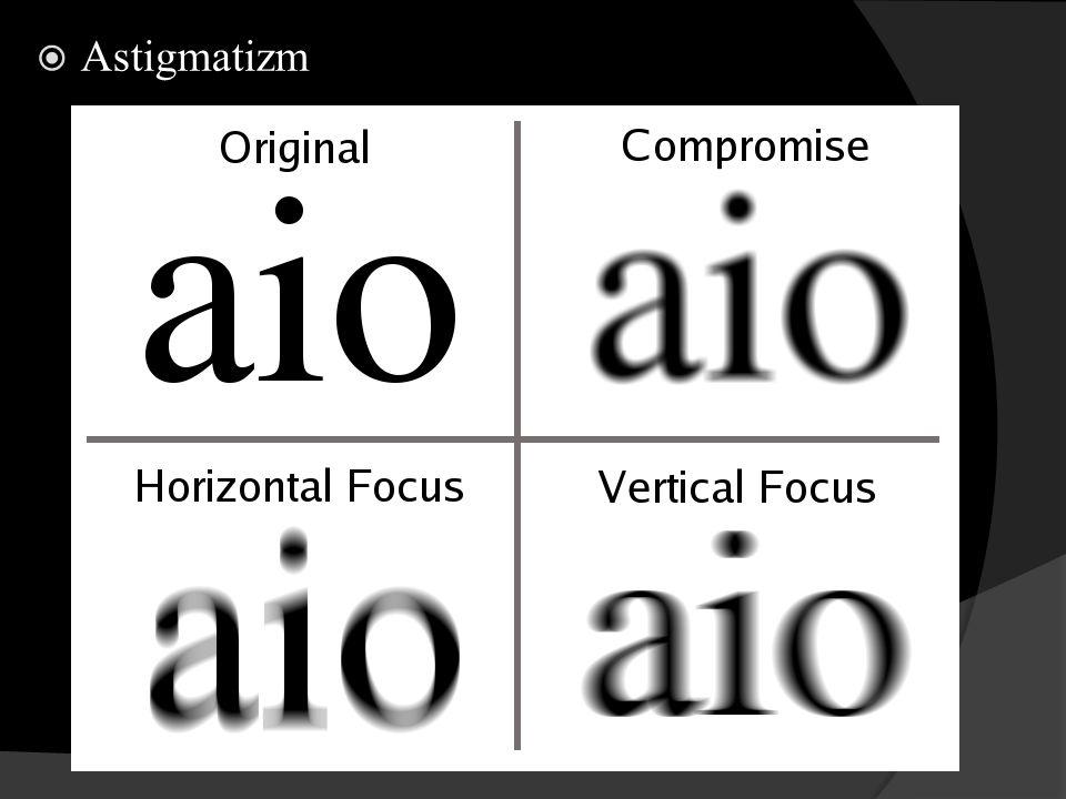 Gözün Hareket Sistemi