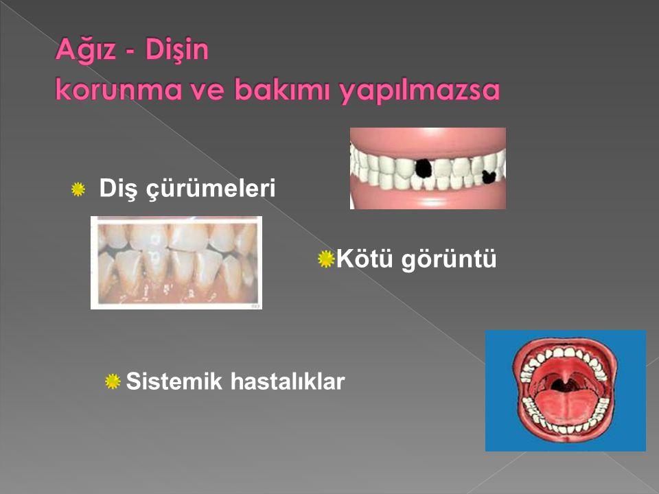 Diş çürümeleri Kötü görüntü Sistemik hastalıklar