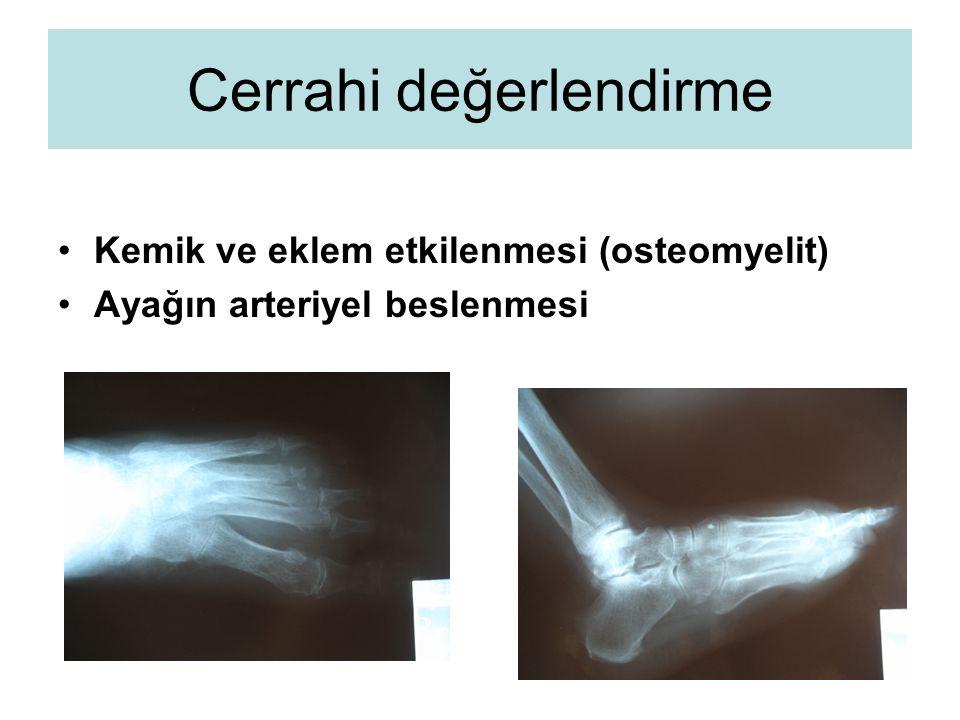 Cerrahi değerlendirme Kemik ve eklem etkilenmesi (osteomyelit) Ayağın arteriyel beslenmesi