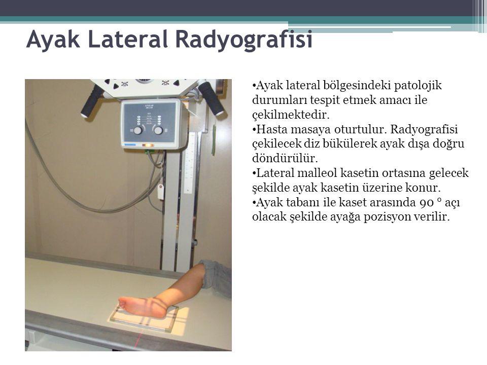 Ayak Lateral Radyografisi Ayak lateral bölgesindeki patolojik durumları tespit etmek amacı ile çekilmektedir. Hasta masaya oturtulur. Radyografisi çek