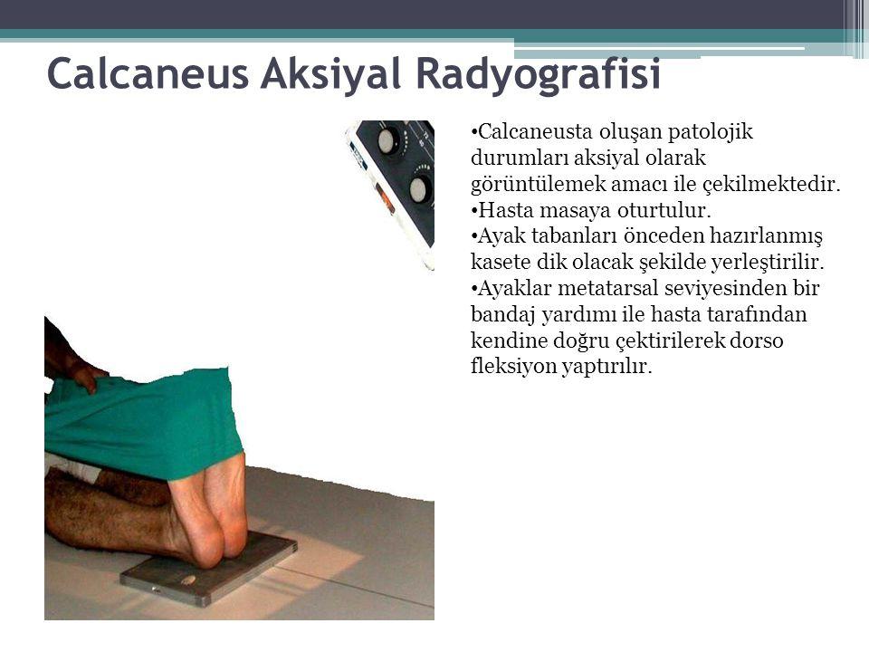 Calcaneus Aksiyal Radyografisi Calcaneusta oluşan patolojik durumları aksiyal olarak görüntülemek amacı ile çekilmektedir. Hasta masaya oturtulur. Aya