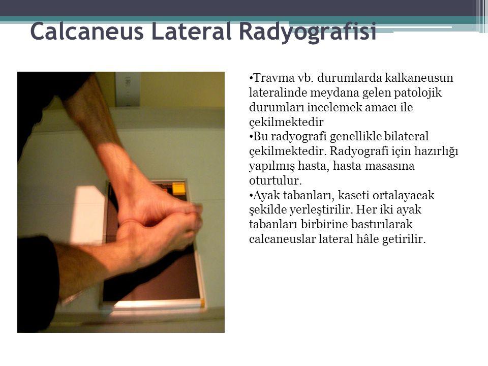 Calcaneus Lateral Radyografisi Travma vb. durumlarda kalkaneusun lateralinde meydana gelen patolojik durumları incelemek amacı ile çekilmektedir Bu ra